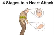 heartattacksnip